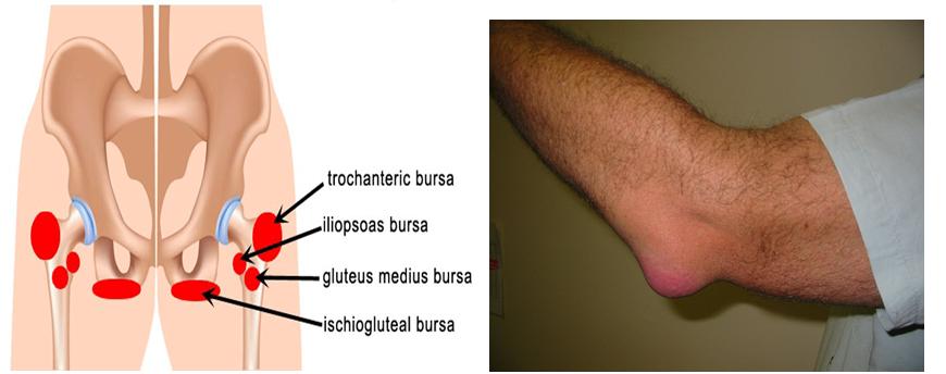 Bursitis2
